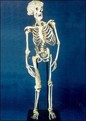 170px-Joseph_Merrick_skeleton